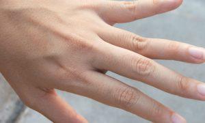 Como é o tratamento para a síndrome das unhas frágeis?