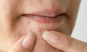 Acne: Como os sabonetes contra oleosidade atuam contra espinhas?