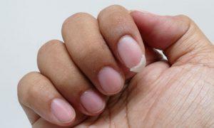 Como identificar que você sofre da síndrome de unhas frágeis?