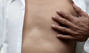 O que é angina? É possível confundir com um infarto?
