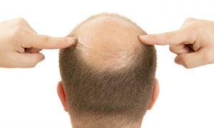 É possível diminuir a queda de cabelo com remédios?