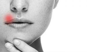 Herpes: Como se prevenir? Como é o tratamento? Saiba tudo sobre a doença