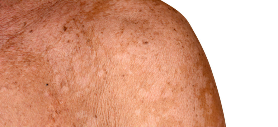 "Exemplo de pele com pitiríase versicolor, ou ""pano branco""."
