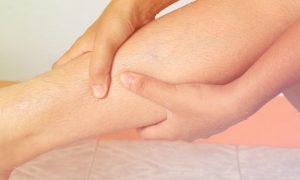 Varizes: O que são os remédios venotônicos? Como eles agem?
