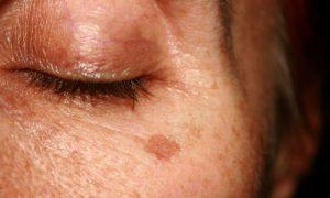 Além da exposição solar, quais são as principais causas de manchas na pele?