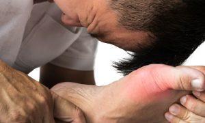 Crises de gota: Qual é a melhor forma de tratamento?