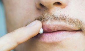 Herpes: você tem crises recorrentes? Procure um médico!