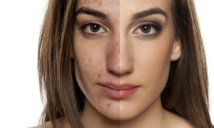 Como é o tratamento para as manchas na pele pós-acne?