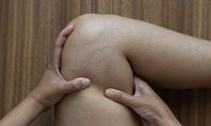 Varizes: como se prevenir de alterações vasculares?